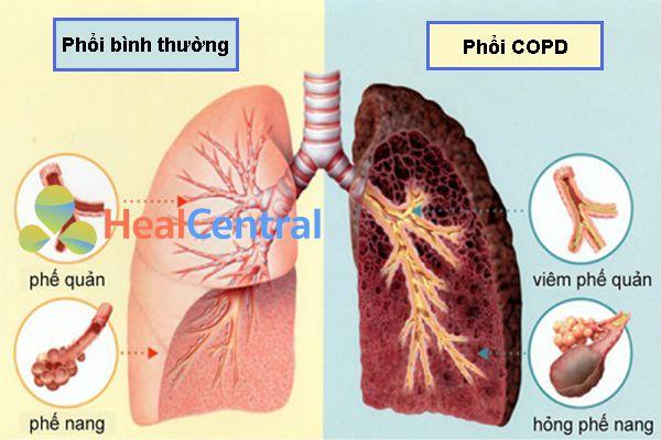 Biến chứng bệnh phổi tắc nghẽn mạn tính (COPD)