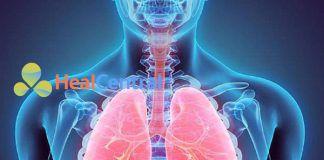 Biến chứng phổi trong bệnh gan