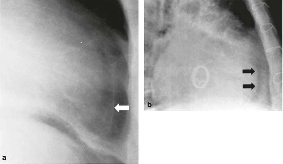 Dấu hiệu bờ mỡ màng ngoài tim trong tràn dịch màng ngoài tim