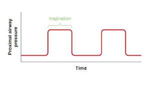 Hình 2.6 Dạng sóng áp lực. Áp lực đường thở gần được vẽ trên trục dọc (y) và thời gian được vẽ trên trục ngang (x). Lưu ý rằng áp lực đường thở gần là hằng định trong khi hít vào.