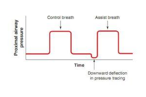 Hình 2.4 Theo dõi áp lực thể hiện nhịp thở kiểm soát máy thở được kích hoạt bởi máy thở và nhịp thở hỗ trợ của bệnh nhân được kích hoạt bởi bệnh nhân. Áp lực đường thở gần được vẽ trên trục dọc (y) và thời gian được vẽ trên trục ngang (x). Lưu ý độ lõm xuống trong đường cong áp lực trước nhịp thở hỗ trợ, chỉ ra rằng có một nỗ lực hít vào của bệnh nhân đã kích hoạt máy thở.