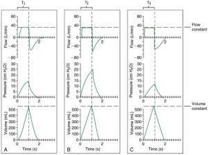 HÌNH 1.1 Đồ thị cho thông khí kiểm soát thể tích (thể tích không đổi), lưu lượng hằng định với độ giãn nở bình thường (A), giảm độ giãn nở (B) và tăng độ giãn nở (C). Lưu ý rằng lưu lượng hít vào nằm trên trục x và lưu lượng thở ra dưới trục x. (Xem văn bản để biết thêm thông tin.)