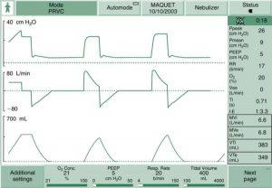HÌNH 1.10 Ảnh chụp màn hình kiểm soát thể tích được điều chỉnh bằng áp lực (PRVC) ở bệnh nhân người lớn trên máy thở Servo-i.