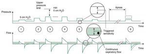 HÌNH 1.11 (1), Nhịp thở thông khí hỗ trợ thể tích (5 cm H2O); (2), áp lực được tăng chậm cho đến khi đạt được thể tích mục tiêu; (3), áp lực tối đa khả dụng là 5 cm H2O dưới giới hạn áp lực trên; (4), thể tích khí lưu thông cao hơn thể tích khí lưu thông đã đưa ra dẫn đến áp lực thấp hơn; (5), bệnh nhân có thể kích hoạt nhịp thở; (6), nếu phát hiện cảnh báo ngưng thở, máy thở sẽ chuyển sang thông khí thể tích được điều chỉnh bằng áp lực. (Mẫu nhịp thở thử nghiệm và cung cấp nhịp thở 5 cm H2O là các tính năng của thiết kế ban đầu; những mẫu này đã được sửa đổi trong các mẫu mới hơn của Servo 300 và Servo-i.) Cho phép của Maquet, Inc., Wayne, NJ.