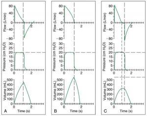 HÌNH 1.2 Đồ thị cho thông khí nhắm mục tiêu áp lực (áp lực không đổi) với độ giãn nở bình thường (A), tăng độ giãn nở (B) và giảm độ giãn nở (C). (Xem văn bản để biết thêm thông tin.)