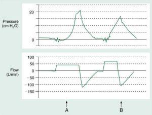 HÌNH 1.4 Đồ thị thông khí bắt buộc liên tục kiểm soát thể tích cho thấy dạng sóng lưu lượng hằng định.