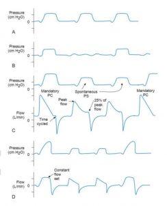 HÌNH 1.5 (A) Chế độ thông khí bắt buộc liên tục kiểm soát áp lực (PC-CMV); nhịp thở được kích hoạt bệnh nhân. (B) Thông khí kiểm soát áp lực bằng chế độ thông khí cơ học ngắt quãng tự phát (PC-IMV) với thông khí tự phát ở đường cơ sở bằng không. (C) Chế độ PC-IMV trong đó hỗ trợ áp lực (PS) đã được thêm vào cho nhịp thở tự phát. Đường cong trên cho thấy áp lực, và đường cong dưới cho thấy lưu lượng. Lưu ý rằng lưu lượng và áp lực đỉnh cao hơn đối với nhịp thở được kiểm soát áp lực bắt buộc và lưu lượng đó trở về 0 trước khi hít vào cuối. Trong nhịp thở PS, hít vào là chu kỳ lưu lượng ở mức 25% lưu lượng đỉnh. (D) Chế độ VC-IMV với PS được thêm vào để thở tự nhiên. So sánh các đường cong trên và dưới (áp lực và lưu lượng tương ứng) trong (D) với các đường cong trong (C).