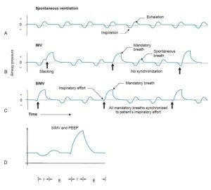 HÌNH 1.6 Dạng sóng áp lực cho thấy sự khác biệt thiết yếu trong (A) thông khí tự phát; (B) thông khí bắt buộc ngắt quãng (IMV); (C) thông khí bắt buộc ngắt quãng đồng bộ (SIMV); D, IMV với áp lực dương cuối thì thở ra (PEEP). Lưu ý rằng trong quá trình thông khí bắt buộc ngắt quãng, nhịp thở bắt buộc (mũi tên thẳng đứng) và nhịp thở tự nhiên không được đồng bộ hóa. Từ Dupuis Y. Ventilators: Theory and Clinical Application, 2nd ed. St. Louis, MO: Mosby; 1992.