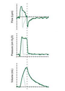 HÌNH 1.8 Đồ thị thông khí hỗ trợ áp lực (PSV) với áp lực vượt mức khi bắt đầu hít vào.