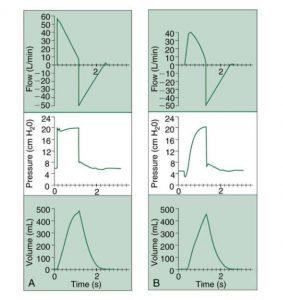 HÌNH 1.9 Hiệu quả của việc điều chỉnh thời gian tăng trong quá trình thông khí hỗ trợ áp lực (PSV). (A) Thời gian tăng nhanh hơn. (B) Thời gian tăng chậm. Từ Hess DR, MacIntyre NR, Mishoe SC, et al. Respiratory Care Principles and Practice. Philadelphia, PA: Saunders; 2002.