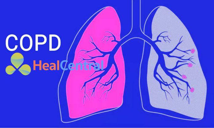 Điều trị tăng huyết áp trong bệnh phổi tắc nghẽn mạn tính