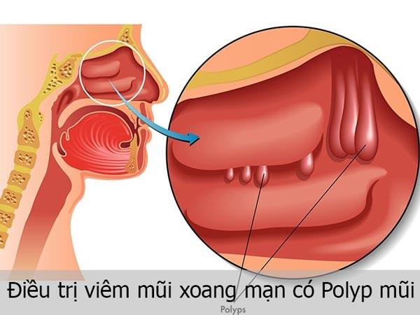 Điều trị viêm mũi xoang mạn có Polyp mũi