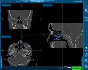 Ứng dụng hệ thống IGS trong phẫu thuật bệnh lí xoang bướm