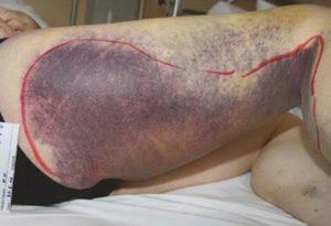 Hình 1.14 Chảy máu tự phát kéo dài vào cơ và mô dưới da ở bệnh nhân có chất ức chế mắc phải với yếu tố VIII. Cho phép của Sirak Petros, MD.