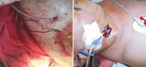 Hình 1.3 Rỉ máu và chảy máu từ các vị trí đặt ống dẫn lưu (a) và catheter (b) ở bệnh nhân bị rối loạn đông máu. Được sự cho phép của Herbert Schöchl, MD.