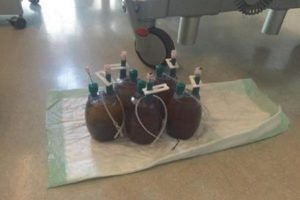 Hình 1.5 Lượng máu mất là một chỉ số xuất huyết đơn giản nhưng thường muộn. Được phép của Martin W. Dünser, MD.