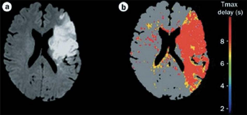 MRI khuếch tán cho thấy một khu vực thay đổi thiếu máu cục bộ (hình ảnh bên trái). Hình ảnh màu bên phải cho thấy các khu vực giảm tưới máu (màu đỏ và vàng). Phép trừ kỹ thuật số của khu vực giảm tưới máu (bên phải) với khu vực thiếu máu cục bộ (ở bên trái) sẽ cho thấy các khu vực bị đe dọa nhồi máu. Hình ảnh từ Tài liệu tham khảo 15.
