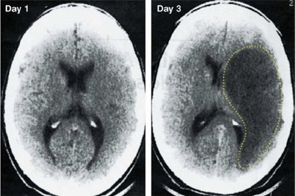 Hình ảnh CT không tương phản từ ngày thứ nhất và ngày thứ ba sau đột quỵ thiếu máu cục bộ. Hình ảnh vào ngày 1 không thể hiện, nhưng hình ảnh vào ngày thứ 3 cho thấy một vùng giảm đậm độ lớn (được vạch ra bởi đường chấm chấm) với hiệu ứng choáng chổ, đại diện cho sự phá hủy mô rộng lớn với phù nề trong não. Hình ảnh từ Tài liệu tham khảo 13.