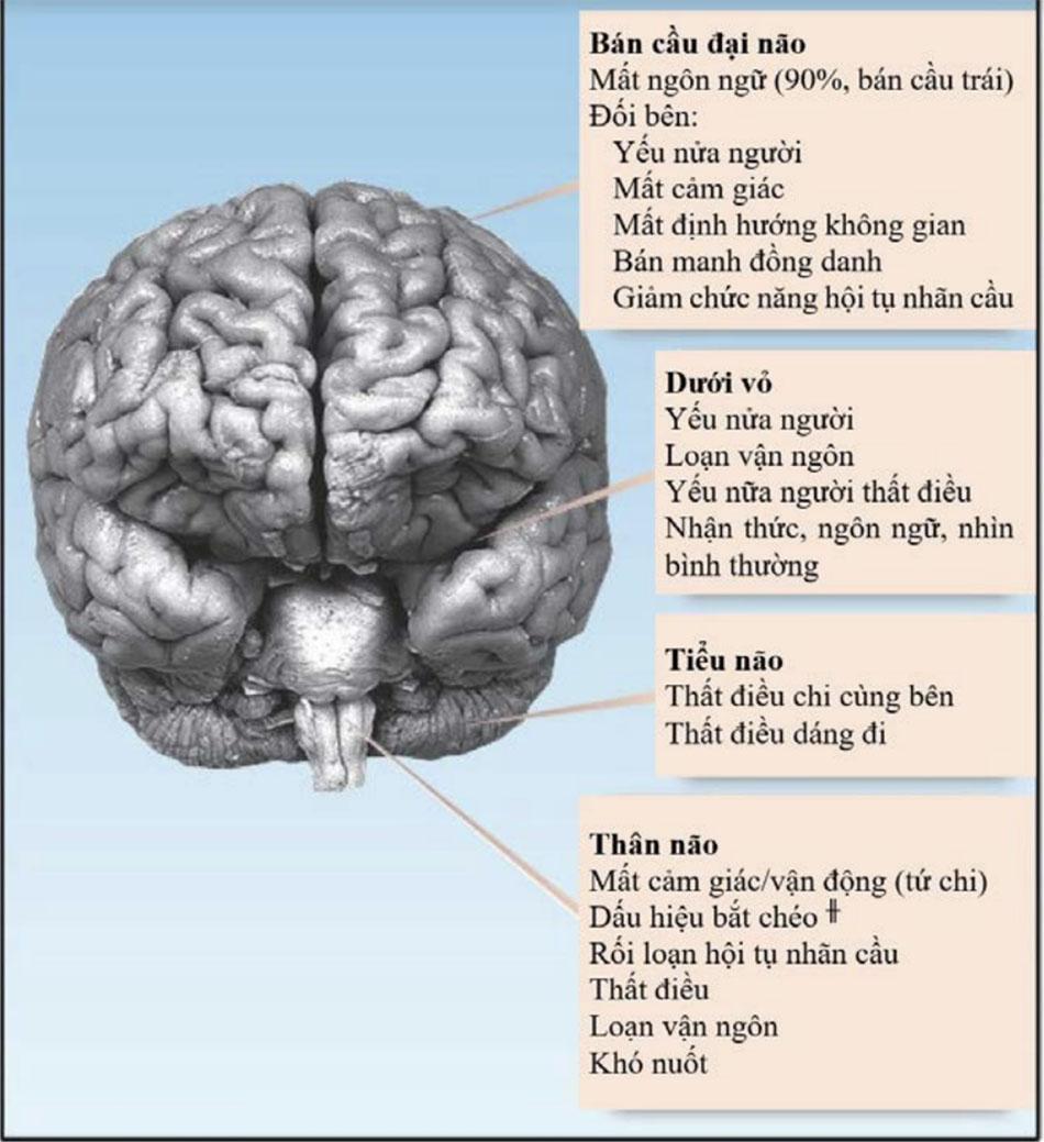 Các khu vực tổn thương não và các bất thường về thần kinh tương ứng. ╫chỉ ra sự thiếu hụt liên quan đến cùng bên của khuôn mặt và đối bên của cơ thể.