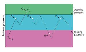 Hình 5.1 Sơ đồ của một phế nang với áp lực phế nang khác nhau. Đường liền nét thể hiện phế nang ở trạng thái đóng và đường chấm đại diện cho phế nang ở trạng thái mở. Lưu ý rằng áp lực phế nang tại Điểm B, Điểm D và Điểm F là như nhau, nhưng phế nang bị đóng tại Điểm B và Điểm F và mở tại Điểm D. Đặt PEEP trên áp lực đóng sẽ ngăn chặn phế nang đang mở đóng lại.