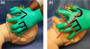 Hình 6. (a). Kỹ thuật đeo mặt nạ túi hai người hai tay với vị trí tay VE; người thứ hai bóp túi. (b). Vị trí tay C, cần tránh. Với sự cho phép của Tiến sĩ A. Matioc.