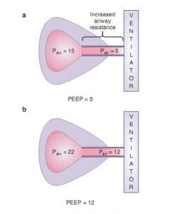 Hình 7.6 Tăng áp lực đường thở gần với PEEP bên ngoài có thể gây bất lợi nếu không có chèn ép đường thở động. (a) Vào cuối thời gian thở ra, áp lực phế nang cao hơn đáng kể so với áp lực đường thở gần, cho thấy sự hiện diện của PEEP tự động. Giả sử rằng một độ dốc 5 cm H2O giữa áp lực đường thở gần và áp lực phế nang là cần thiết để đạt được áp lực ngưỡng và/hoặc thay đổi lưu lượng để kích hoạt máy thở, bệnh nhân phải giảm áp lực phế nang xuống 0 cm H2O (giảm 15 cm H2O) để kích hoạt máy thở. (b) Nếu PEEP bên ngoài tăng lên 12 cm H2O từ 5 cm H2O và không có hiệu ứng thác nước, áp lực bổ sung được truyền đến phế nang, làm tăng áp lực phế nang và làm tăng quá trình siêu bơm phồng. Bệnh nhân vẫn cần giảm áp lực phế nang 15 cm H2O để kích hoạt máy thở.
