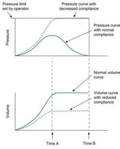 Hình 3.10 Dạng sóng từ máy thở thể tích cung cấp đường cong áp lực sóng hình sin.