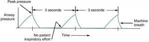 Hình 3.4 Đường cong thông khí kiểm soát áp lực. Nỗ lực của bệnh nhân không kích hoạt nhịp thở cơ học; thay vào đó, hít vào xảy ra ở các khoảng thời gian bằng nhau.