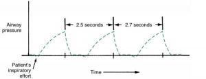Hình 3.5 Đường cong hỗ trợ áp lực. Nỗ lực của bệnh nhân (áp lực lệch âm so với đường cơ bản) xảy ra trước mỗi nhịp thở của máy. Nhịp thở có thể không xảy ra ở các khoảng thời gian bằng nhau.