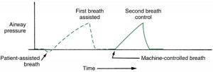 Hình 3.8 Đường cong áp lực kiểm soát/hỗ trợ. Nhịp thở được kích hoạt (hỗ trợ) của bệnh nhân cho thấy áp lực lệch âm của áp lực trước hít vào, trong khi nhịp thở kiểm soát (kích hoạt theo thời gian) thì không.