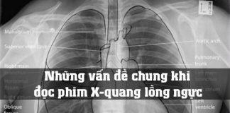 Những vấn đề chung khi đọc phim X-quang lồng ngực