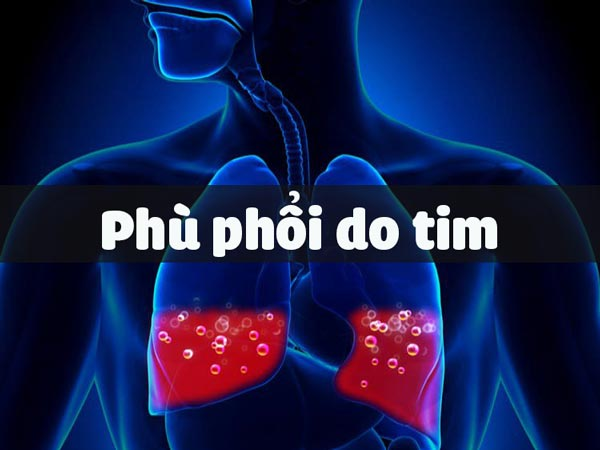 Phù phổi do tim