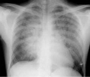 Hình ảnh phù phổi chụp X quang
