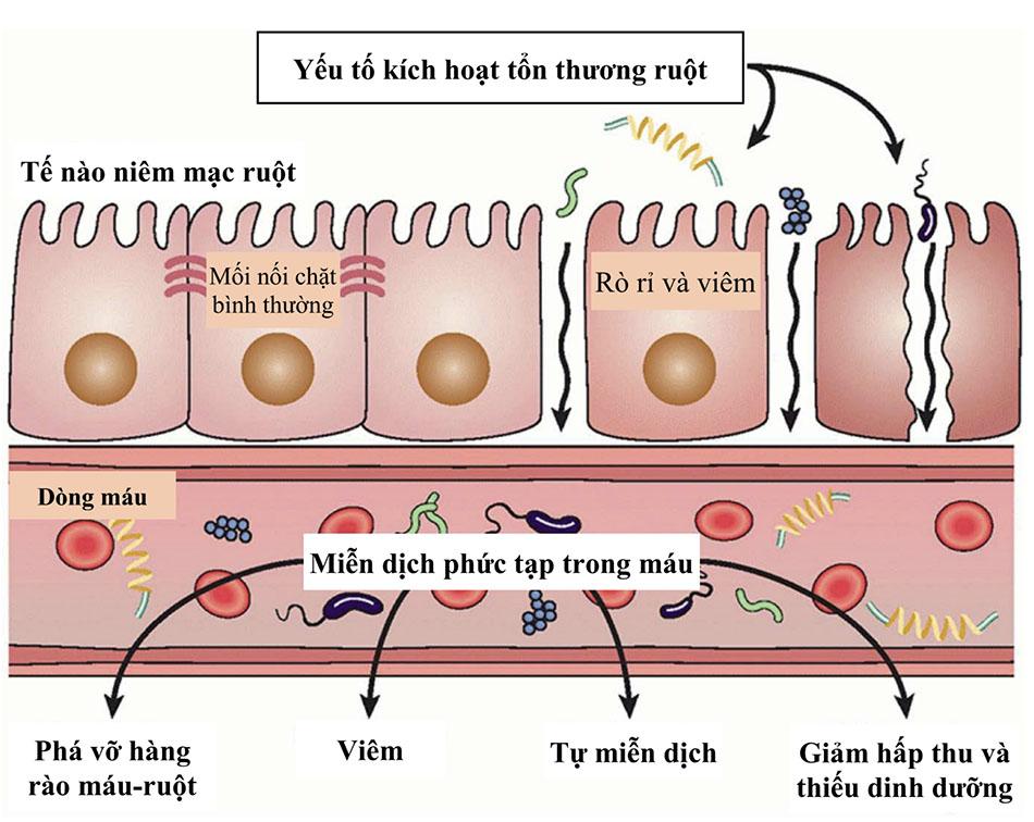 Hội chứng rò rỉ ruột