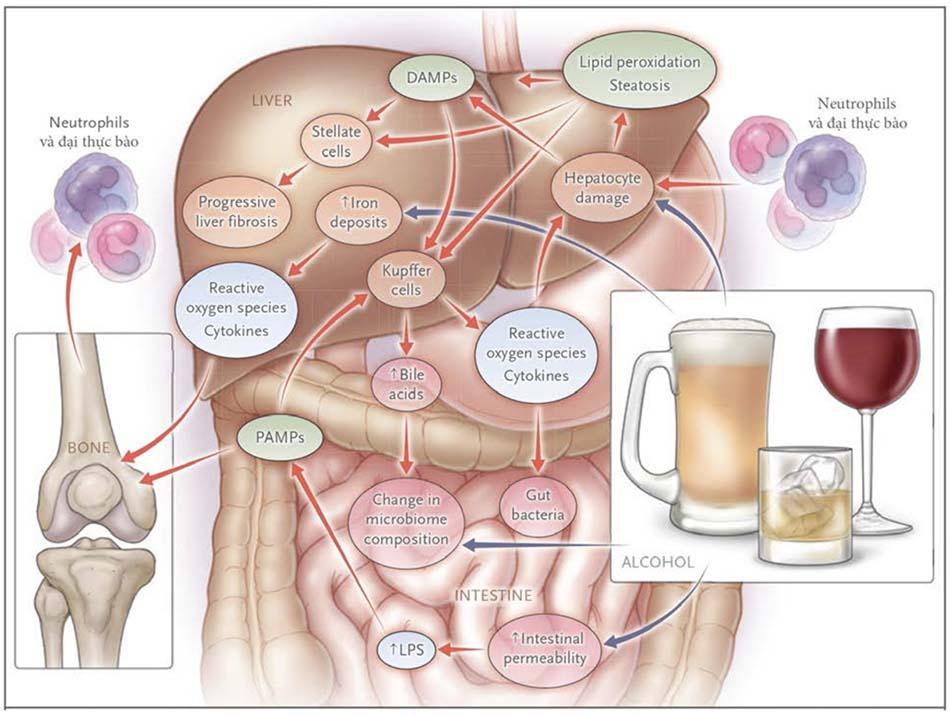Sơ đồ tổn thương gan do rượu.