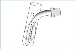 Fig 12 Fenestrated tracheostomy tubes: holes in the tube allows airflow (dashed arrow ) up to the vocal cords