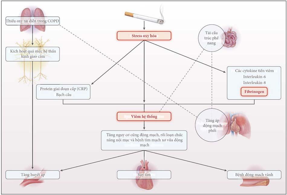 Các cơ chế tiềm năng về mối liên quan của bệnh phổi tắc nghẽn mạn tính (COPD) với tăng huyết áp và các bệnh tim mạch khác.
