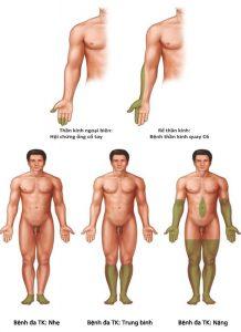 Hình 1.10 Các mô hình điển hình của suy giảm cảm giác với các bệnh lý thường liên quan