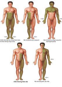 Hình 1.11 Các mô hình điển hình của suy giảm cảm giác với các bệnh lý thường liên quan