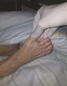 Hình 1.7 Cảm giác vị trí khớp bằng cách yêu cầu bệnh nhân nói hướng di chuyển ngón chân.