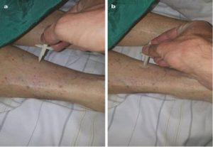Hình 1.8 Thử nghiệm cảm giác nông (chạm tốt) bằng cách yêu cầu bệnh nhân phân biệt giữa các vật nhọn (a) và tù (b). Cả hai được sự cho phép của Daniel Dankl, MD