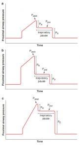 Hình 4.3 Dạng sóng áp lực với thủ thuật tạm dừng hít vào. (a) Áp lực đỉnh và bình nguyên bình thường. (b) Áp lực đỉnh tăng nhưng áp lực bình nguyên bình thường. Áp lực đỉnh tăng là do tăng trong thành phần sức cản của áp lực đường thở gần (PR). (c) Áp lực đỉnh tăng và áp lực bình nguyên tăng. Áp lực đỉnh tăng là do tăng trong thành phần đàn hồi của áp lực đường thở gần (PE).