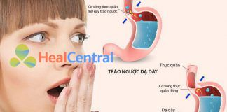 Tìm hiểu về bệnh trào ngược dạ dày thực quản