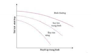 Hình 2 - Thể tích nhát bóp và mối quan hệ HA trong tim bình thường và suy tim. (Với sự cho phép của Weber et al