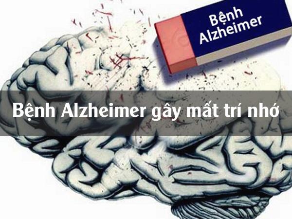 Bệnh Alzheimer gây mất trí nhớ