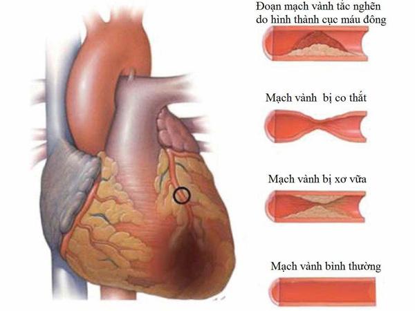 Mảng xơ vữa gây thiếu máu cơ tim