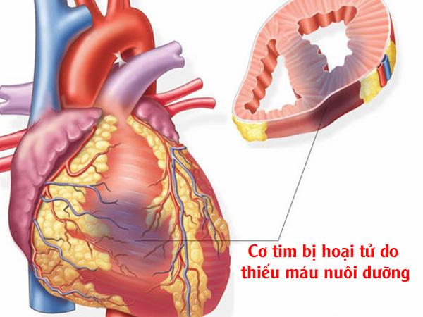Cơ tim bị hoại tử do thiếu máu nuôi dưỡng