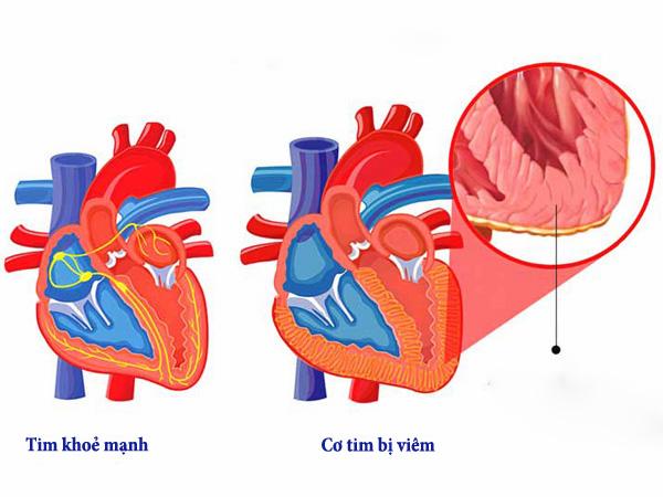 Hình ảnh viêm cơ tim