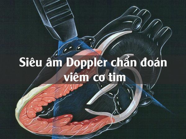 Siêu âm Doppler chẩn đoán viêm cơ tim
