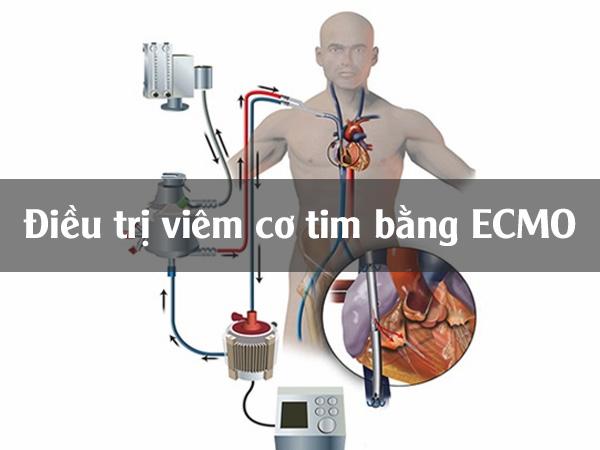 Điều trị viêm cơ tim bằng phương pháp tuần hoàn ngoài cơ thể